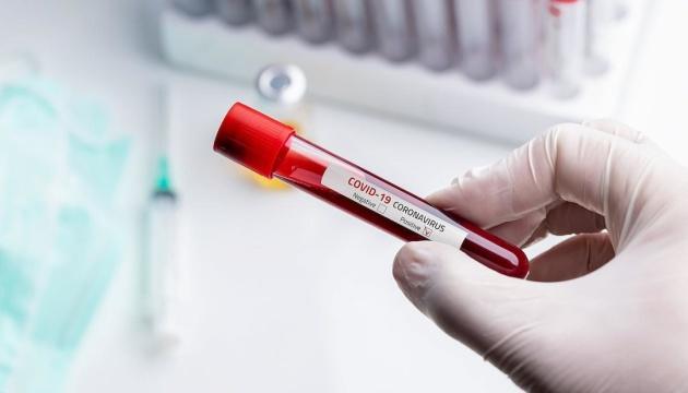 Эпидемия коронавируса обвалила авторынок Украины